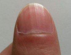 指甲上有竖纹是怎么回事 手指甲有竖纹的原因