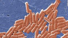 美国43州640人感染沙门氏菌