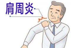 肩周炎怎么治疗最快最好方法